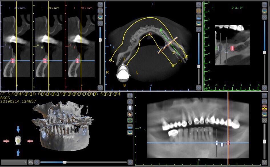 Планирование операции по имплантации зубов