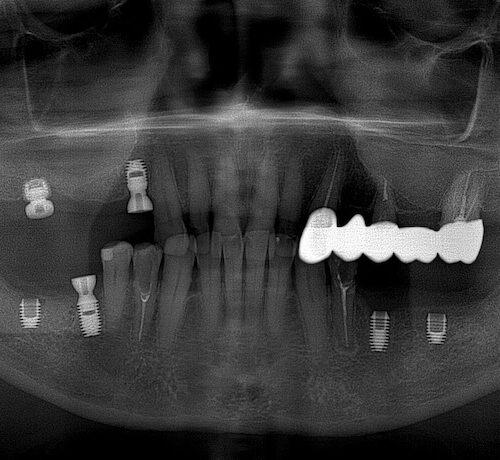снимок после имплантации зубов