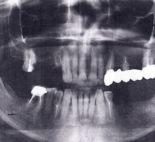 снимок зубов до имплантации