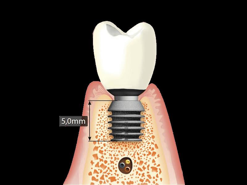 Короткие зубные импланты