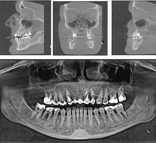 КТ зубов