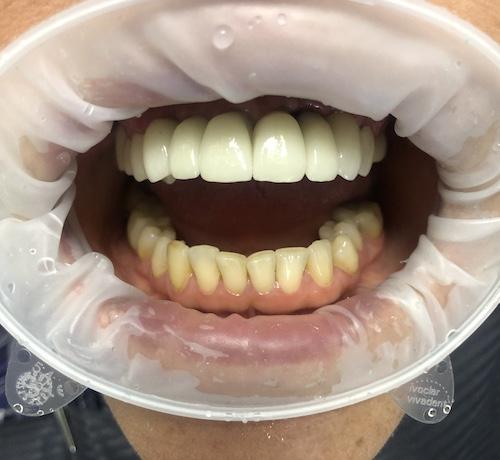 зубные коронки на имплантах