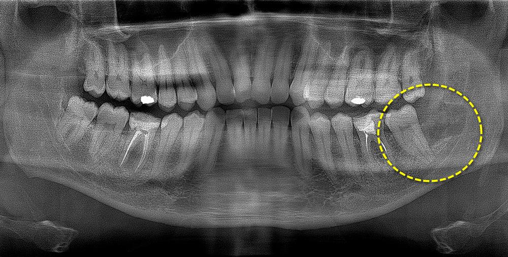 зуб мудрости после удаления
